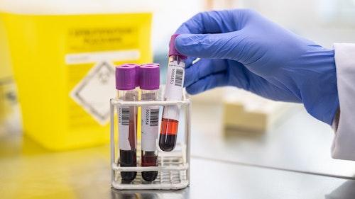 Britische Coronavirus-Mutation erneut im Kreis Vechta nachgewiesen