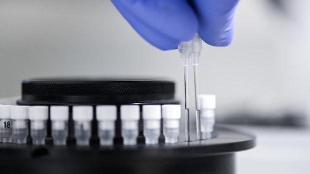 Zahl festgestellter Virus-Varianten steigt kräftig an