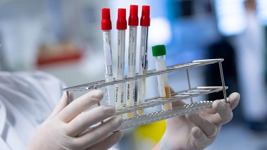 Corona-Tests: Die neuesten Ergebnisse entscheiden darüber, wie sich die 7-Tages-Inzidenz im Landkreis Cloppenburg entwickelt. Symbolfoto: dpa