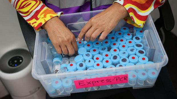 RKI registriert 4171 Corona-Neuinfektionen
