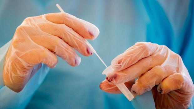RKI meldet 10.810 Corona-Neuinfektionen und 294 neue Todesfälle